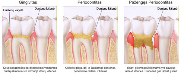 Periodontitas parodontozė