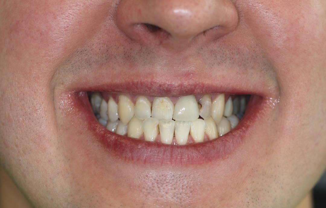 Aušra vaškelienė | Dantų laminatės