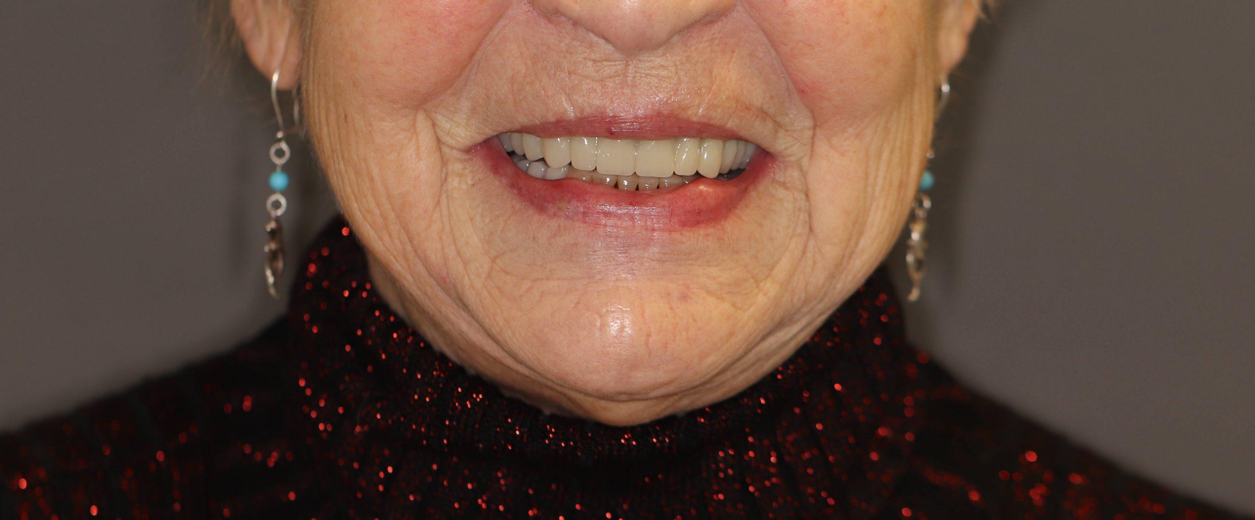 Daryta: all on 4 viršutinio žandikaulio implantacija, per savaitę pagamintas nuolatinis prisukamas protezas – titano karkasas su akriline apdaila, plombuoti nusidėvėję apatinių dantų kraštai ir pagamintas išimamas apatinio žandikaulio protezas.   Vizitų skaičius: dantų šalinimas ir vienmomentė all on 4 implantacija bei trys vizitai protezavimui.  Atskitu vizitu plombuoti nusidėvėjusių dantų kraštai ir prireikė dar 3 vizitų apatinio žandikaulio išimamo protezo gamybai.