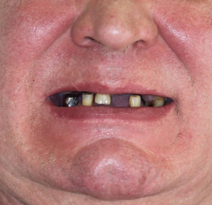 Bedančių žandikaulių protezavimas | Vilniaus implantologijos NAMAI