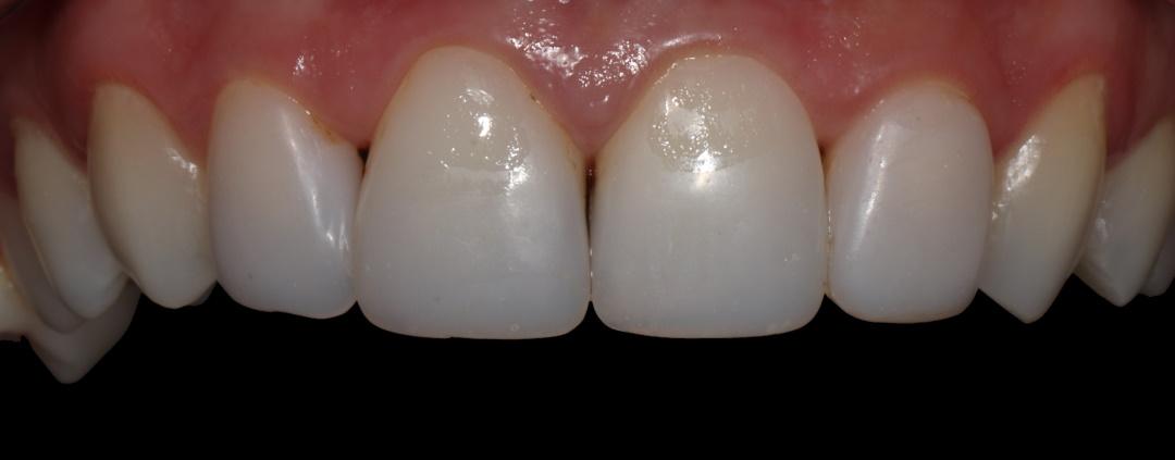 Dantų venyrai