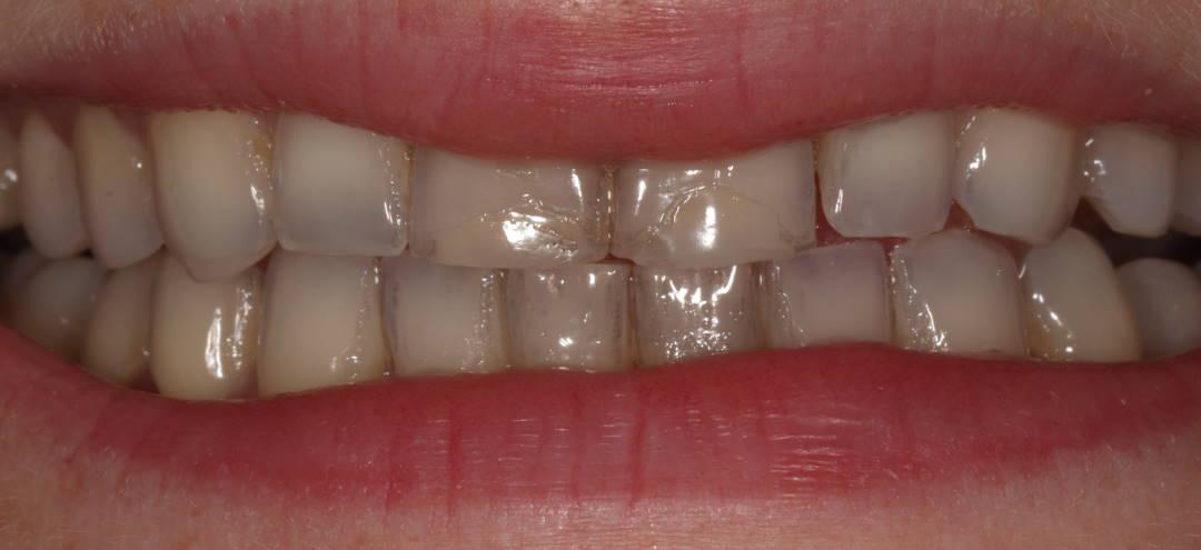 Dantų laminatės | Estetinis plombavimas